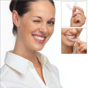 Advantage of Transparent Braces