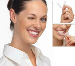 Invisalign/ Orthodontics